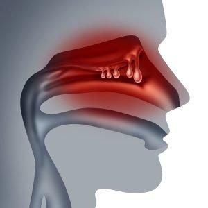 nasal polyps surgery in india