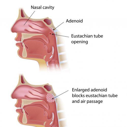 Adenoids surgery in india | Sinus Doctor